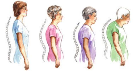 Q & A: Why Do Seniors Have Rounded Backs? - DailyCaring