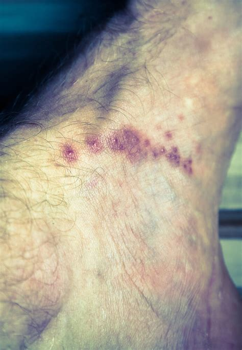 Scabies: Understanding scabies and treatment recommendations?